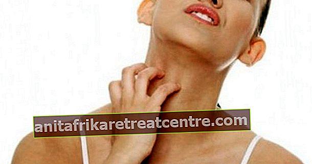 Apakah gejala gatal-gatal? Adakah sarang berjangkit?