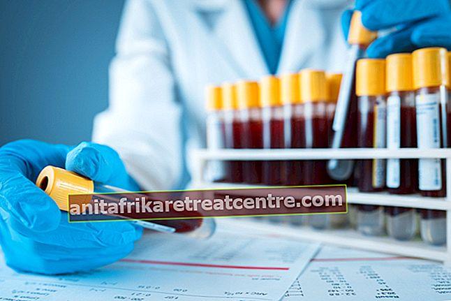 Apakah RDW itu? Apa arti RDW rendah dan tinggi dalam tes darah? Nilai RDW normal