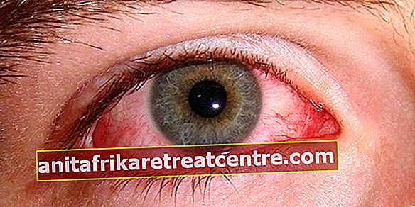 เลือดออกที่ตาเป็นอย่างไร?