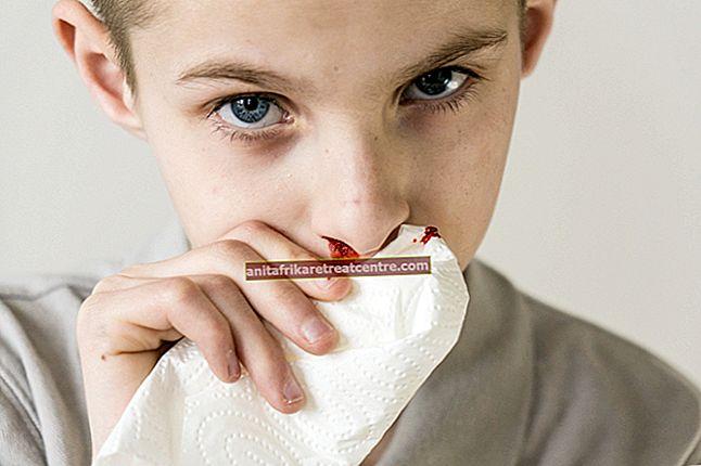 Quali sono le cause del sangue dal naso nei bambini? Come fermare il sangue dal naso?