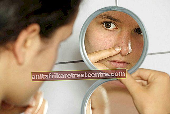 Quali sono gli alimenti che causano l'acne? Alimenti che causano l'acne