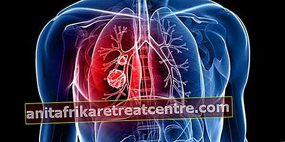 Quali sono i sintomi dell'infiammazione polmonare?