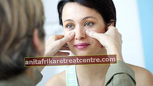 Apa yang baik untuk sinusitis? Bagaimana nyeri sinusitis hilang? Pengobatan herbal yang baik untuk sakit kepala dan gejala lainnya