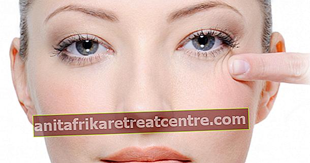 Come passano le rughe sotto gli occhi?