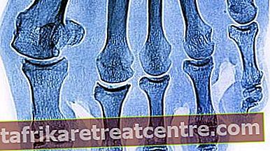 骨折や骨癒合には何が良いですか?骨折した骨が融合するのにどれくらい時間がかかりますか?