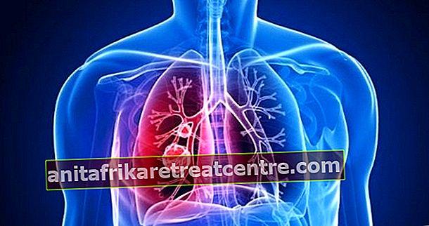 気管支炎には何が良いですか、それはどのように通過しますか?気管支炎、ハーブおよび自然の解決策のための家庭薬