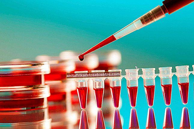 การตรวจเลือดการตั้งครรภ์ทำเมื่อใดและอย่างไร? จะถูกกำหนดโดยการตรวจเลือดการตั้งครรภ์หนึ่งสัปดาห์หรือไม่?