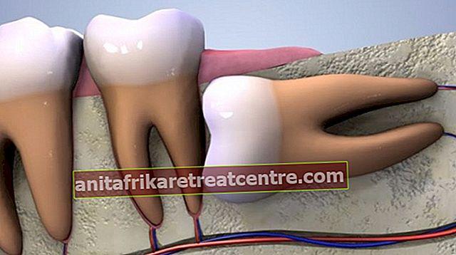 ปวดฟันยุค 20 มีอาการอย่างไร? ปวดฟัน 20 อย่างดีอย่างไรและผ่านมาได้อย่างไร? วิธีแก้ปัญหาจากธรรมชาติที่บ้าน